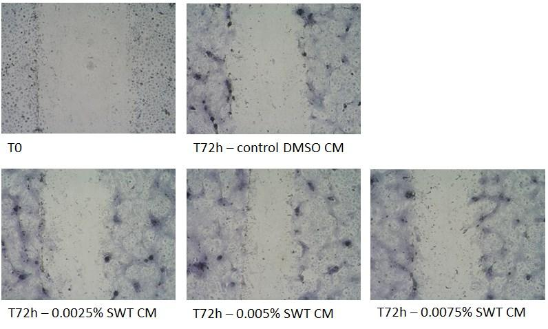 % of re-epithelialization vs. T0 70 60 50 40 30 20 10 0 DMSO CM SWT 0.0025% CM SWT 0.0050% CM SWT0.