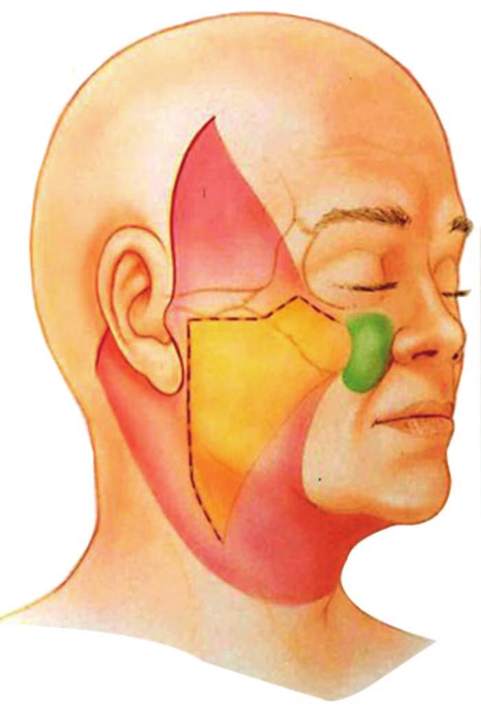 Volume 129, Number 5S Restoring Facial Shape in Face Lifting for this dissection is essentially an extension of a standard SMAS dissection anteriorly and superiorly into the malar region, to allow