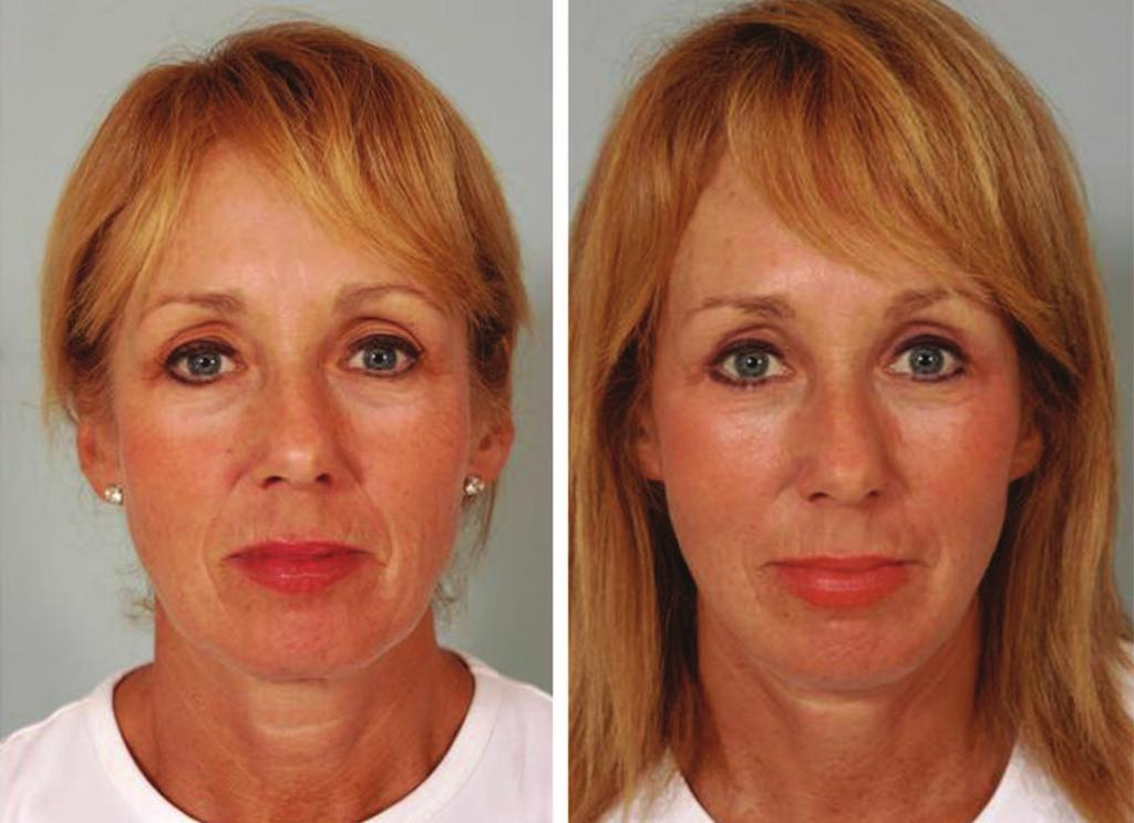 Volume 129, Number 5S Restoring Facial Shape in Face Lifting Fig. 13.