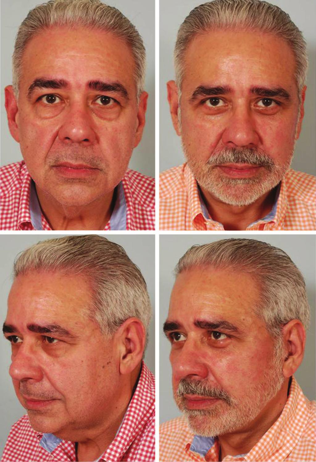 Volume 129, Number 5S Restoring Facial Shape in Face Lifting Fig. 3. (Left) Preoperative appearance of a 59-year-old man after a 90-pound weight loss from a gastric bypass procedure.