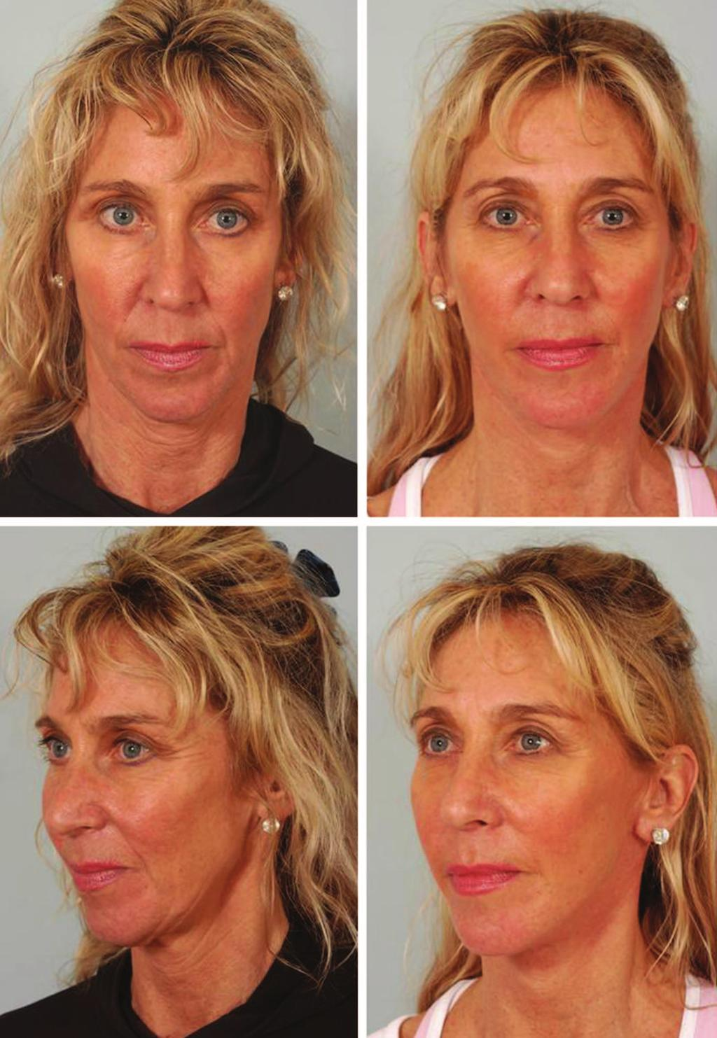 Volume 129, Number 5S Restoring Facial Shape in Face Lifting Fig. 5. Long,thinfacesoftenbenefitfromanenhancementofmalarvolume.