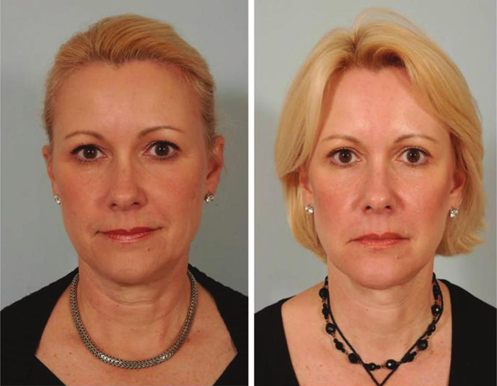 Volume 129, Number 5S Restoring Facial Shape in Face Lifting Fig. 8. (Left) Preoperative appearance.