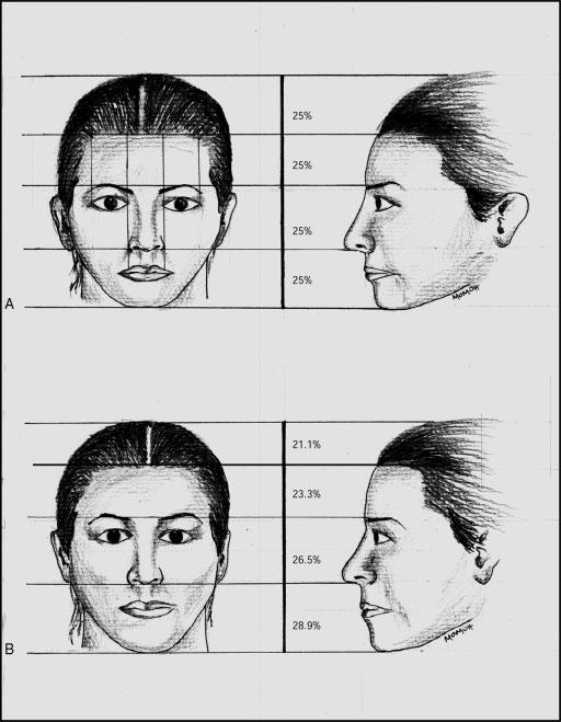 VARIATIONS OF STRUCTURAL COMPONENTS/McKNIGHT ET AL 165 Figure 1 (A) Frontal and lateral views of a young adult face based on neoclassic canons.