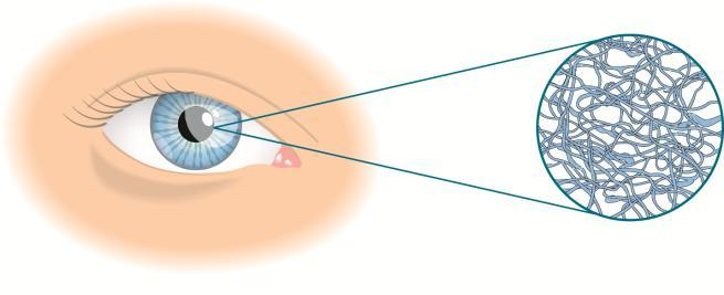 This is how Sodium Hyaluronate (SH) works: While blinking, SH molecules align and spread easily over the surface of the eye.