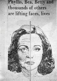 This drawing appeared in a newspaper. More than a face lift would be required to obtain the result depicted above.