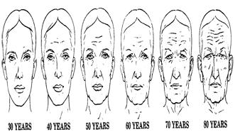 Liposuction can remove unwanted fat from the neck and jaw line.