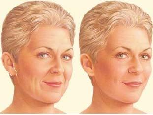 Step 2 The incision Depending on the degree of change you d like to see, your facelift choices include a traditional facelift, limited incision facelift or a neck lift.