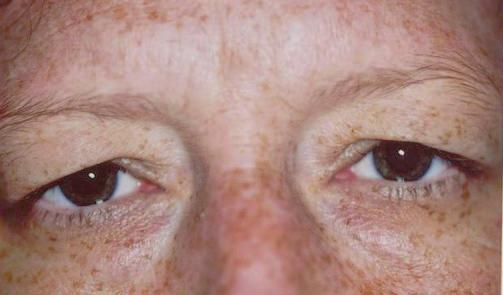 The low position can give you that tired or angry look a condition called Brow Ptosis.