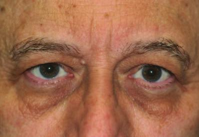 diagnosed mild to moderate brow ptosis, then you may be a candidate for the Endotine Transbleph procedure.