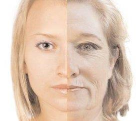 Muscles loose their tone. Habitual facial expressions (ex grimacing) causes skin to form wrinkles.