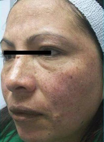 Laser Spots & rosacea The latest