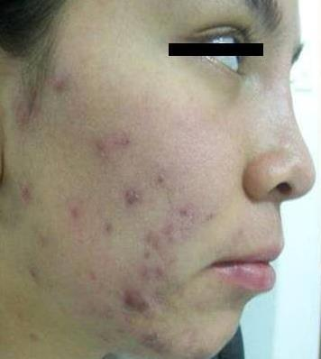 Laser Acne PRE POST Laser technology
