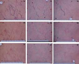 melanin pigment-patients with PIH have a tattoo -do not treat with