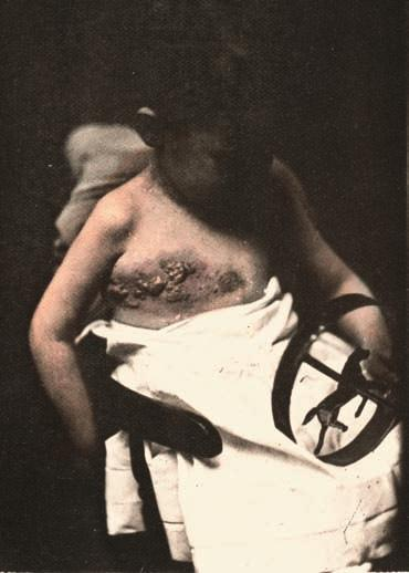 9 Example of clothing and jewellery in medical photographs. Impetigo. In Hardy, A.