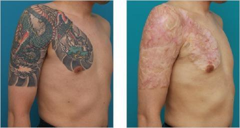 Why the conventional tattoo removal wisdom, that laser removal is the only option or the most effective not only hurts your wallet but also sometimes leaves you with completely avoidable scars!