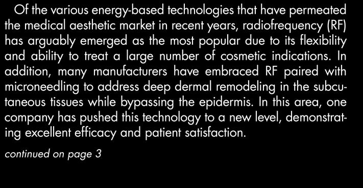 in recent years, radiofrequency (RF) has arguably emerged as the most