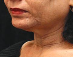 be called for to address subcutaneous fat 2 and provide more tightening. Neck and mandible before and three months after one BTL Exilis Ultra Tx Photos courtesy of Suneel Chilukuri, M.D.