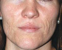Extensive acne scars would require multiple insertion points over the entire scarred area.