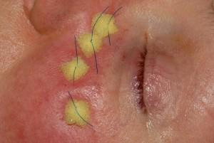 The appearance of the Prolene stitches and sponge bolsters at the completion of surgery The needles are passed away from the eye and are brought out through the skin below the eyelids and tied over