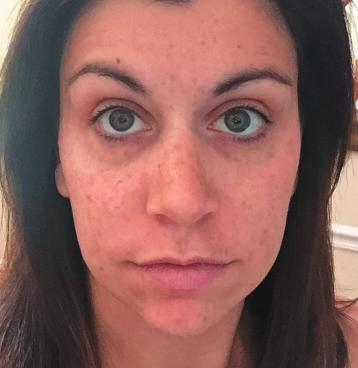 LIGHTENING REGIMEN After 8 weeks of Lightening use, participants in a clinical study noticed the following results:* PERCENT OF PARTICIPANTS HAD A REDUCTION IN: dark marks LAUREN,