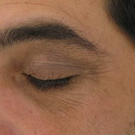 CLINICAL RESULTS: AOX + EYE GEL 8 WEEKS AOX + EYE GEL