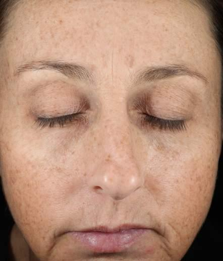 CLINICAL RESULTS: ADVANCED PIGMENT CORRECTOR 12 WEEKS ADVANCED PIGMENT CORRECTOR REDUCTION OF