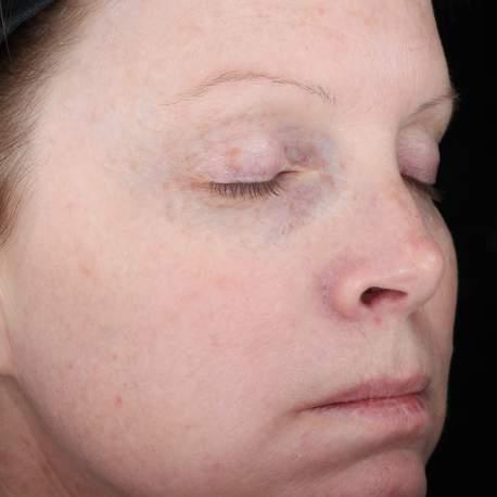 moderate discolorations, laxity, fine lines, and wrinkles (USA, 2013).