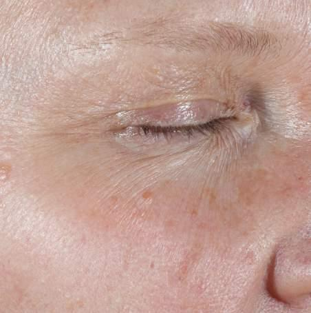 CLINICAL RESULTS: C E FERULIC 12 WEEKS C E FERULIC REDUCTION IN FINE LINES AROUND THE EYE AREA 16-week clinical study conducted on 50 Caucasian male and female subjects ages 40-60 years old