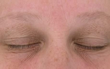 CLINICAL RESULTS: AOX + EYE GEL 12 WEEKS REDUCTION IN DISCOLORATIONS, FINES LINES,