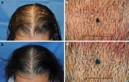 Slide 40 Hair Regrowth Efficacy and Safety of a Low-level Laser Device in the Treatment of Male and Female Patter n Hair Loss: A Multicenter, Randomized, Sham Device -controlled, Double-blind Study-