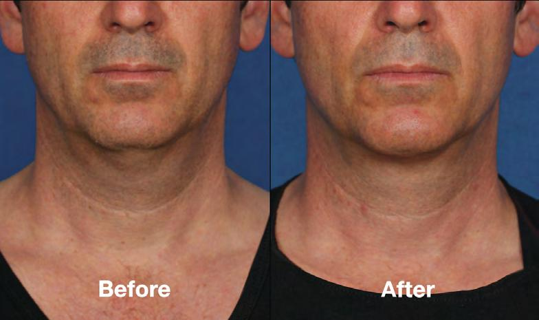 reduce their neck fat with Kybella.