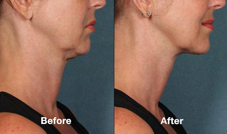 Botulinum toxin (Botox ) can reduce prominent vertical neck bands (platysmal bands), which may appear to look more prominent after
