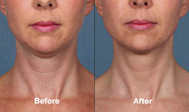 Q&A What happens to my neck skin as I lose the neck fat? For most patients, the skin remains just as tight as before treatment.