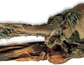 ÖTZI THE ICEMAN How did Ötzi