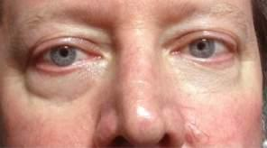 Rob Noecker, MD * Erythema of Rosacea Although rosacea is predominantly a skin condition, it often leads to eyelid and ocular surface