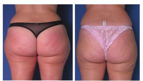 4.1.3 ANTI CELLULITE The anticell treatment from the Beauty Vibro Plate PLUS shows from the very first moments of the exercise: a