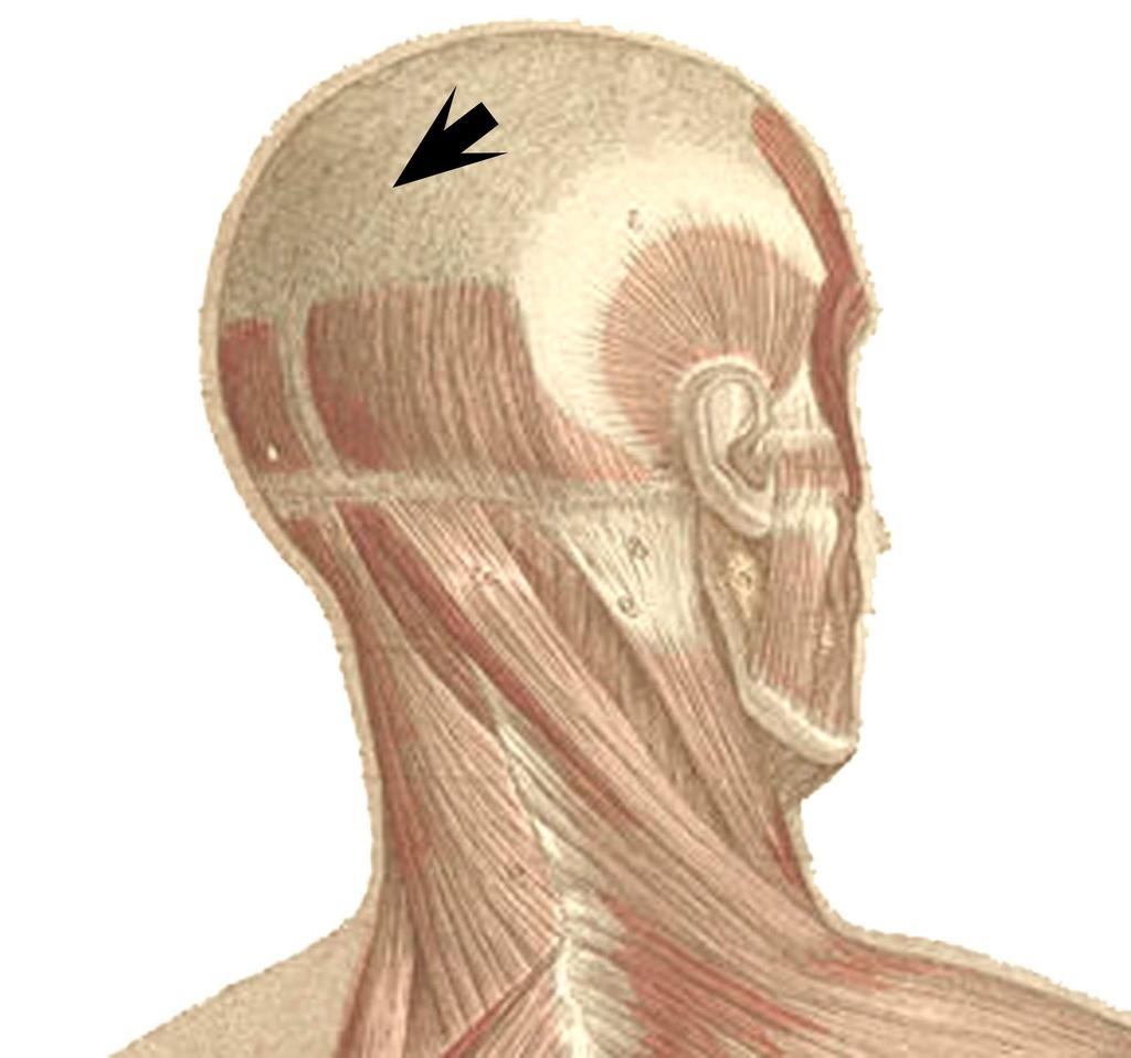 Figue 6: Location of the holes and traces of scraping on the skull.