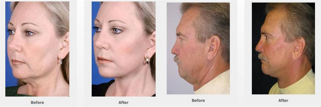 Houston (Rhytidectomy) in (Rhytidectomy) (Rhytidectomy) Houston A (Rhytidectomy) is a common surgery that provides an excellent way to improve facial contours that no longer reflect a patient s