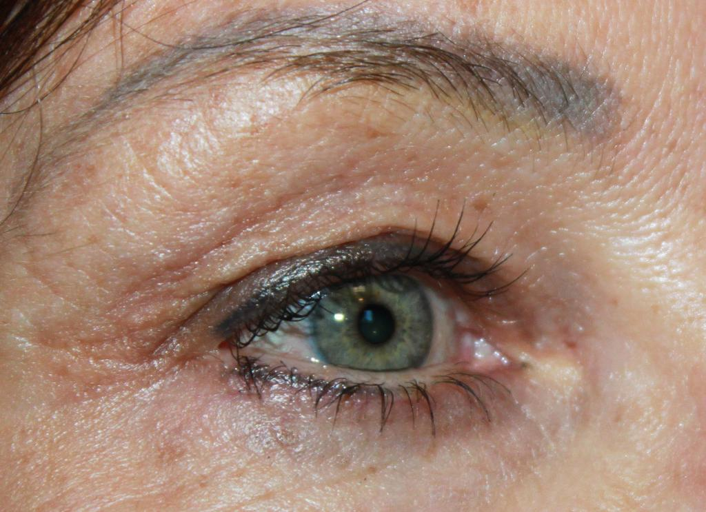 33 INTENSIVE EYE THERAPY (CONTINUED) Designed specifically to reinvigorate aging skin surrounding the eye.